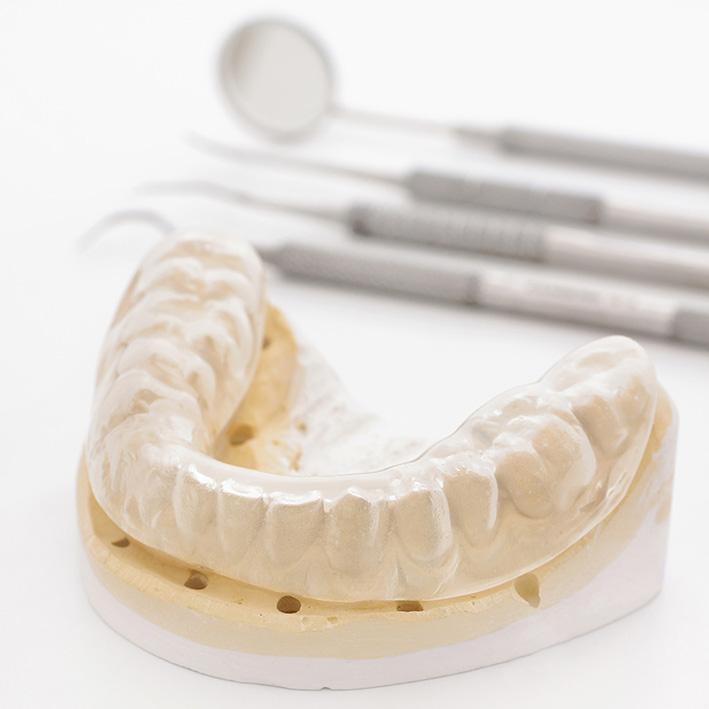 tratamiento bruxismo dentista leganes