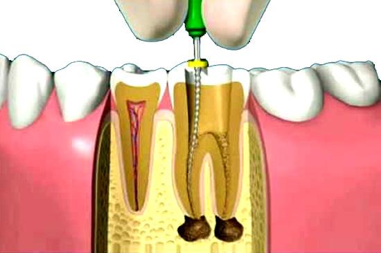 endodoncia dentista leganes