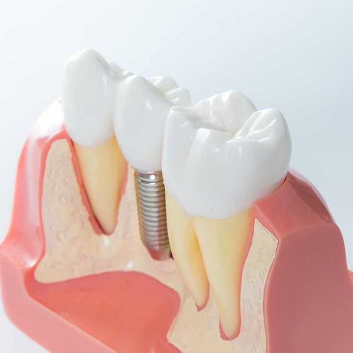 implantes leganés