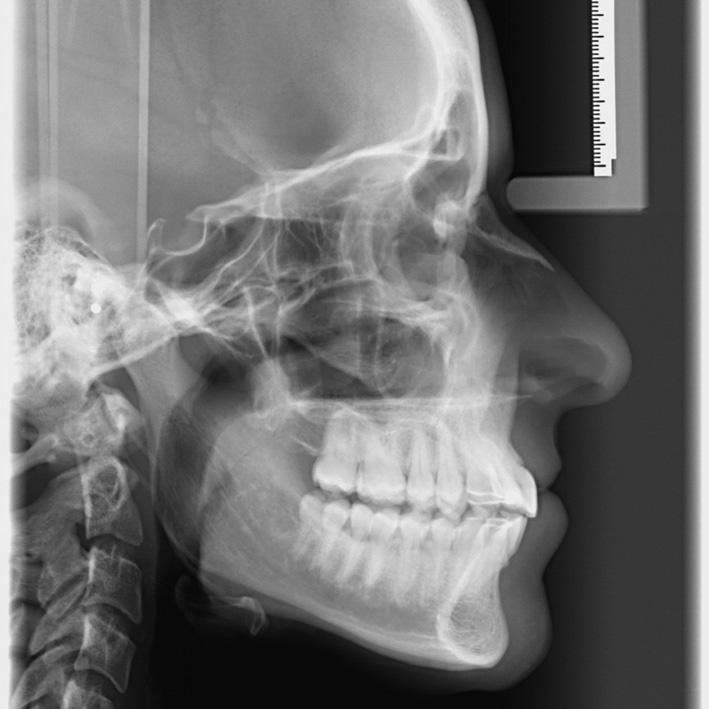 rayos x : radiografías dentista leganes